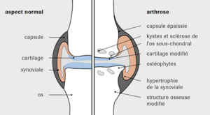Modifications articulaires dans l'arthrose